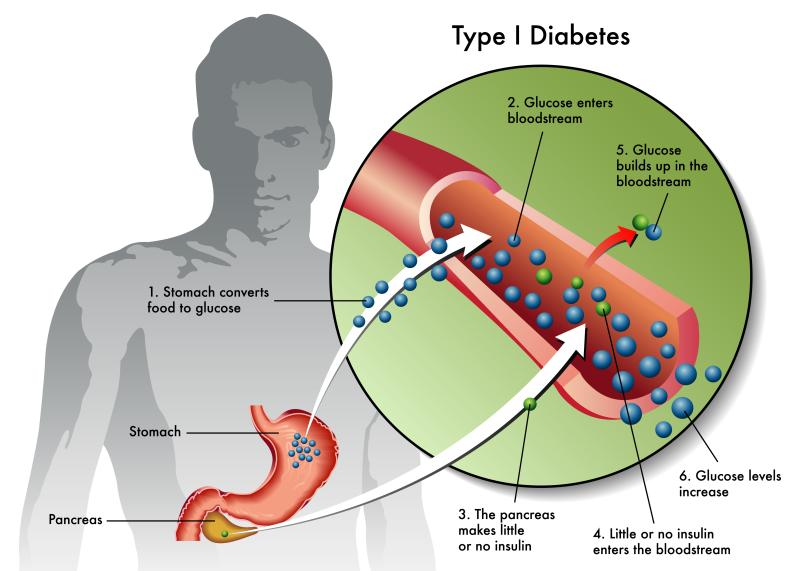 Type 1 Diabetes Symptoms, Causes and Treatment