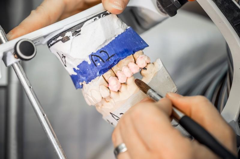 No more fillings as miracle gel regrows tooth enamel