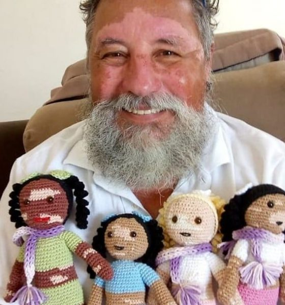 Grandfather with vitiligo made dolls for children with the same condition